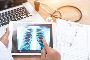 G 27 Biomonitoring und Lungentest