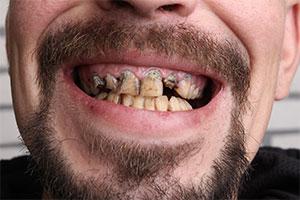 G22 zur Verbesserung der Mundhygiene